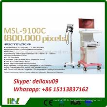 Vente chaude Fashion Type Trolley Colposcope électronique numérique Colpscope Colposcope MSL9100C-A
