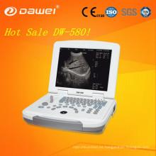 máquina de terapia por ultrasonido y escáner de ultrasonido portátil China