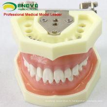 DENTAL04 (12563) Modèles d'étude dentaire de type modèle anatomique avec la gomme molle