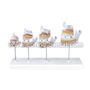 Dentition Teeth Model