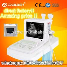 full digital echo portable ultrasonic machine