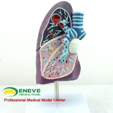 LUNG04 (12501) Côté du modèle anatomique pulmonaire malade, 2/3 Modèle anatomopathologique du poumon