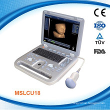 MSLCU18K CE ISO13485 approuvé 4D Digital Ultrasound Machine / scanner Doppler couleur avec DICOM 3.0