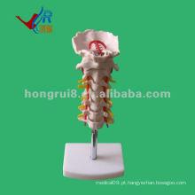 Coluna vertebral cervical vívida, modelo da espinha médica