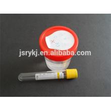 Descartável 9,5 ml tubo de urina de vácuo