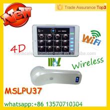 MSLPU37M sondes à vessie sans fil et protable à vessie homologuées CE & ISO