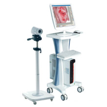 2015 Top Selling Cheap Electronic Colposcopes Medical Equipment