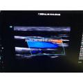 """Nouvelle Arrivée 19 """"plus 10.4''LED Temps Réel 4D couleur doppler trolley haut de gamme 3d 4d machine à ultrasons"""