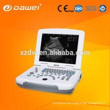 ecografos portatil&portable ultrasound system&echography DW580