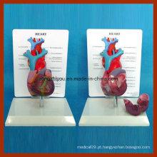 Tamanho físico Modelo de anatomia cardíaca com tubo de sangue longo humano com placa de descrição
