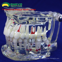 SELL 12568 Adult Dental Teeth Transparent Disase Model Show Caries