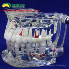 Продать 12568 взрослая Стоматологическая зубы модель прозрачный Disase Показать кариеса