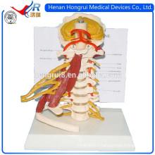 Modèle de la colonne vertébrale cervical avancée ISO avec des nerfs et des muscles