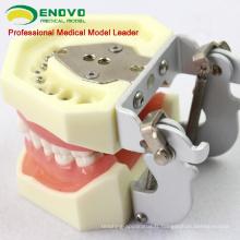 VENDRE 12609 Traiter les maladies parodontales à moyen degré
