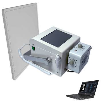 Mobile x ray unit mobile digital x-ray machine mobile x ray machine price affordable for  medical diagnosis