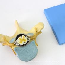 VERTEBRA11 (12395) Science vertèbres thoraciques vertèbres avec la moelle épinière (modèle médical, modèle anatomique)