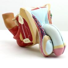 ANATOMY09 (12447) Male Insert Bised Männlichen Genitalien & Blasenkrebs & Prostata, 4teilig, Anatomie Modelle> Männlich / Weiblich Modelle