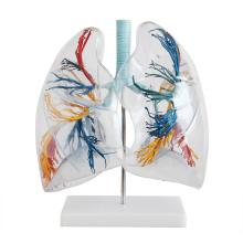 LUNG02(12499) Бронхиального дерева с Гортанью и прозрачный легких, 2 раза полный размер жизнь , Анатомия модели > модели легких