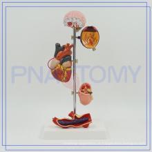 PNT-0759 Modelos de Hipertensão Médica, Modelo de Pressão Alta