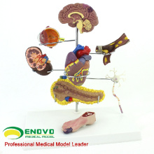 HEART22 (12555) Modèle anatomique médical du diabète humain