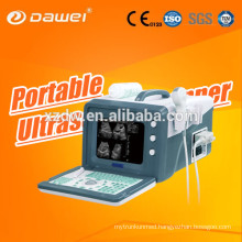 Portable Sonography Machine Price Medical for DW-3101A 2D Echocardiography ultrasound equipment china latest version USG