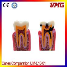 Dental Professional Teeth Model and Dental Models