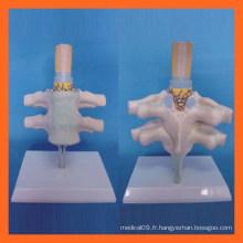 Vérité de la vertébrale cervicale humaine, du modèle anatomique du nerf spinale