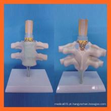 Vertebra cervical humana vívida, modelo anatômico do nervo espinhal