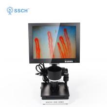 Observação de microcirculação terminal de microscópio digital
