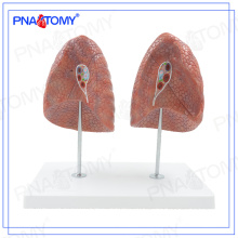 PNT-0475 human model of left and right lung model