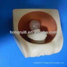 Modèle de pratique du préservatif féminin féminin, modèle de préservatif DIU
