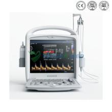 Ultrasonido de color digital Doppler de diagnóstico portátil