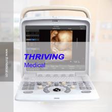 Scanner à ultrasons Doppler couleur portable (THR-CD005Q)