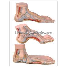 Conjunto ISO de pé normal, pé plano e modelo de pé arqueado