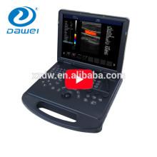 doppler ultrasound machine&ecografos portatil DW-C60