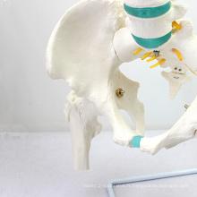SPINE04-1 (12376) Modèle vertébral de colonne vertébrale de taille de la vie de Science médicale avec des modèles de fémur, de colonne vertébrale / vertèbre