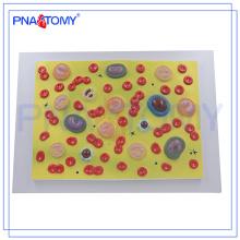 PNT-0421 Modelo De Células Sanguíneas De Ensino De Anatomia Biológica Do Corpo Humano