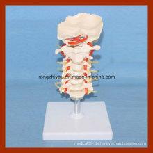 Menschliche Größe Zervikal Modell mit Scheiben und Spinal Nerven Anatomie Modell