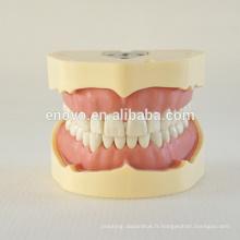 Modèle d'étude dentaire de dents de vis de type de BF 13005, costume de dents de rechange pour la mâchoire de Frasaco