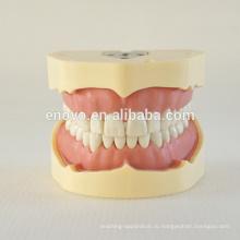 Тип BF модель винта Стоматологическая исследование зубов 13005, замена костюм для зубов Frasaco челюсти