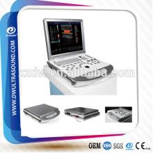 maquina de ecografia 3d 4d & 4d portátil cor doppler ultra-som
