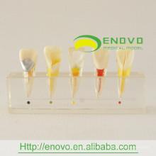 Modèle clinique de la maladie pulpaire dentaire meilleur prix EN-M6 directement du fabricant