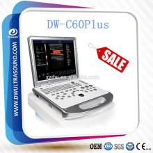 DW-C60 economical color doppler ultrasound & laptop color doppler