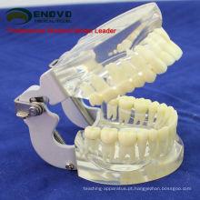 DENTAL12 (12572) modelo mandíbula transparente com dentes para auto escovação Educaion