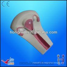 IUD Trainingsmodell