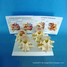Medizinisches menschliches Knochen-Skelett-Modell für die Biologie-Lehre (R020701)