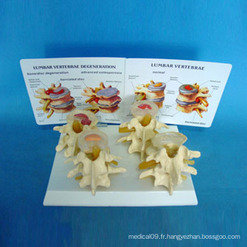 Modèle médical de squelette de la colonne vertébrale humaine pour l'enseignement (R020701)