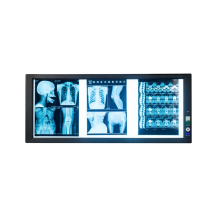 Hot sales Double medical LED X-ray film viweing box negatoscope in hospital