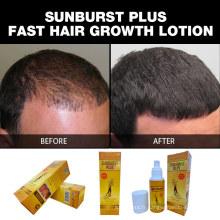 Nouvelle mise à niveau 100% produits de croissance des cheveux authentiques Sunburst Plus Lotion de croissance des cheveux 100 ml pour Anti-chute de cheveux rapide