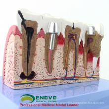 DENTAL35(12625-1) Large Size Dental Implant Didactic Medical Anatomy Models